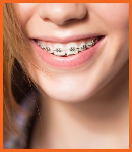 Teeth laminates palmdale